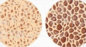 骨粗鬆症の正しい検査と最新の治療薬【骨粗鬆症の予防法も】