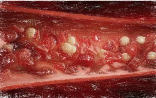 血液成分とその役割【血液の基本】